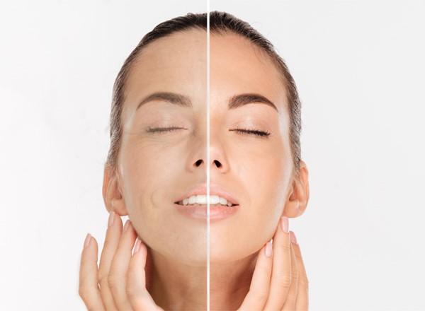 face blading
